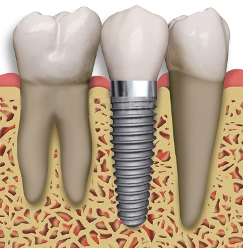 dental-implant-diagram