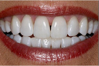 After Kor teeth whitening