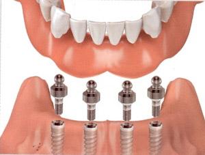 Hilton Head Implant Overdentures