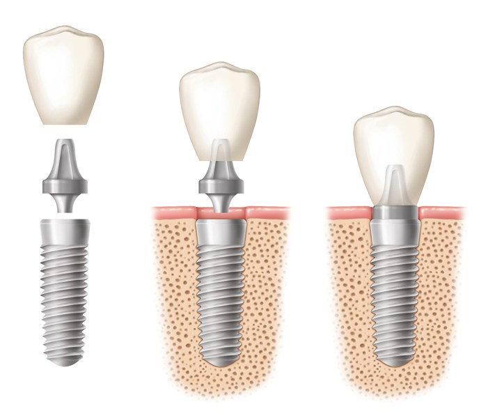 An illustration of three dental implants at various stages of crown placement
