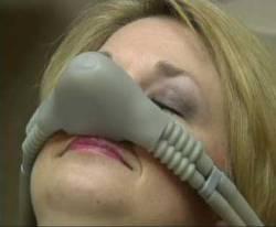 A woman receiving nitrous oxide